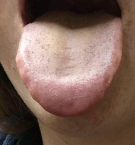 tongue 1 month after